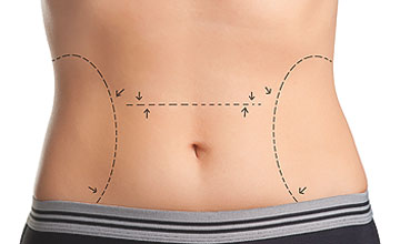 abdominoplastia andorra